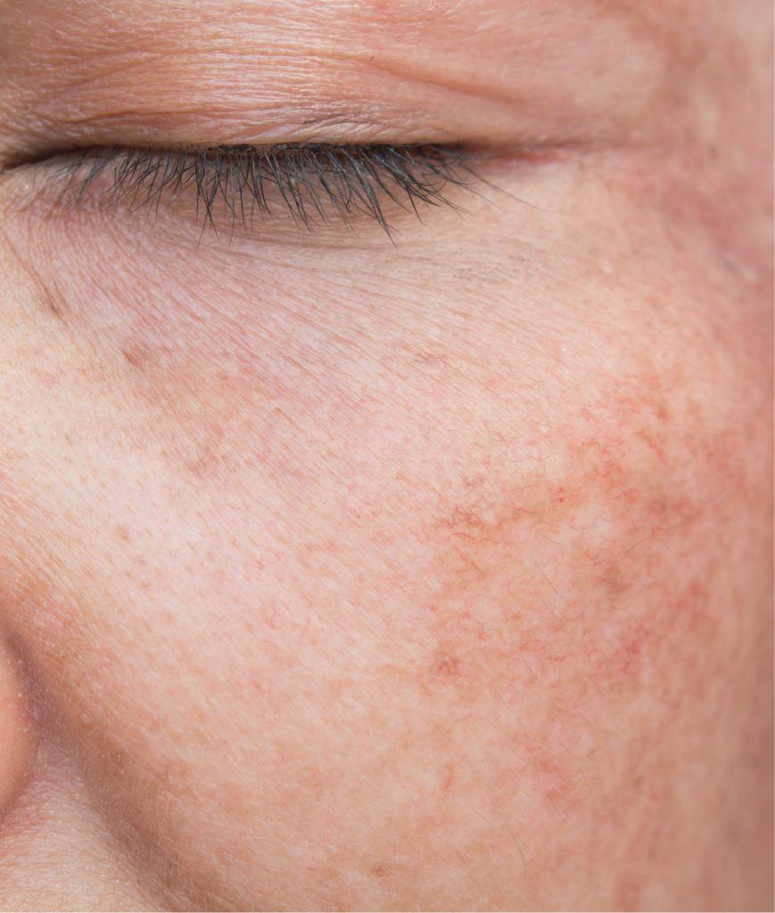 Sun-damaged skin
